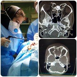 نخستین عمل جراحی